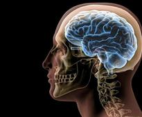 Chinese woman alive despite brain's key area missing