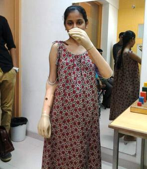 Salute! Monika More who lost both arms in rail accident scores 63% in HSC