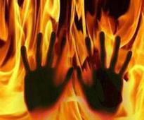 Two toddlers suffer burn injuries as car catches fire