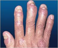 Current Psoriatic Arthritis (PsA) Treatment may be Inefficient